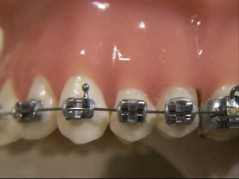 Braces cleaning demonstration