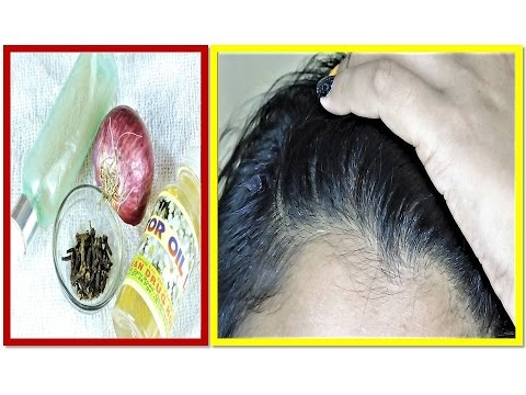 how to HAIR GROWTH FAST with onion/gharelu/tips in Hindi