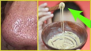 Try this to vanish OPEN PORES within 10 MINUTES/INDIANGIRLCHANNEL TRISHA