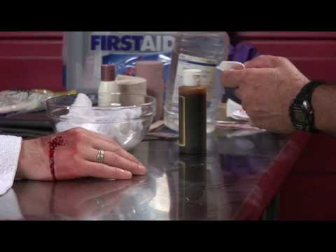 First Aid Tips : Treating Cat Bites