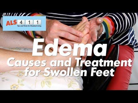 5 Ways to Get Rid of Edema