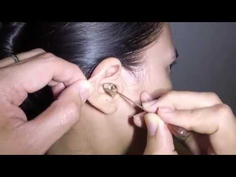 Woman's Earwax Finally Removed after 25 Years