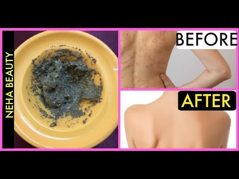 Get Rid of Back Acne/ Pimples/Blackheads At Home In 3 days| Pimples on back |Back Acne| Neha Beauty