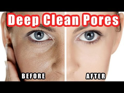 How to Clean Pores - Deep Cleaning Your Pores on Nose + Face Easily