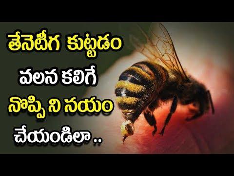 Remedies To Treat a Bee Sting Instantly - Mana Arogyam Telugu Health Tips