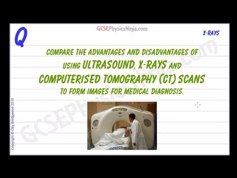 Ultrasound vs X-ray Photography and CT Scans - Advantages and Disadvantages - GCSE Physics