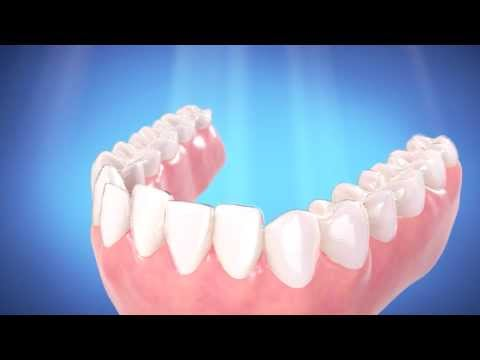 Make Me Smile - Invisalign by Drs. Burkland and Ferrell