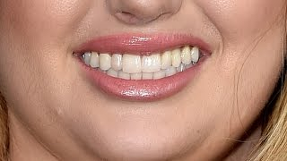 Can You Guess The Aussie Celeb From Their Smile?