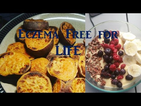 5 Tips for a Successful Eczema-Free Diet