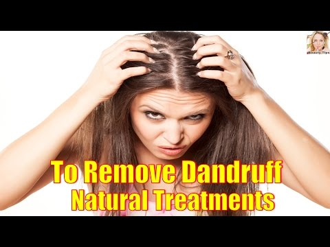 Natural Treatments to Get Rid of Dandruff