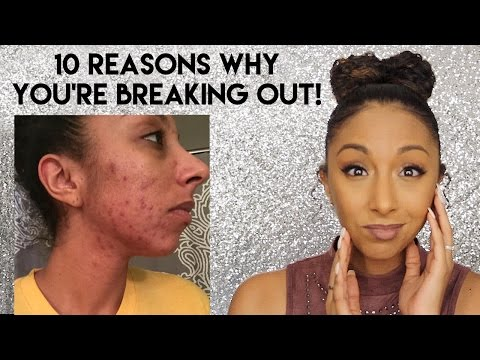 10 Reasons Why You're Breaking Out! Acne Tips! | BiancaReneeToday