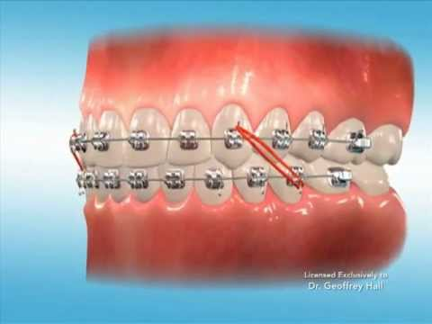 Advanced Orthodontics - Elastics