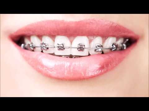 7 Secrets To Getting Your Braces Off Sooner (You Won't Believe Number 5!)