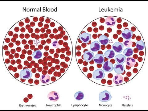 How to Prevent Leukemia - Leukemia Symptoms