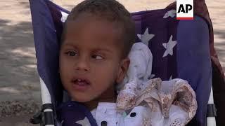 Refugees from Venezuela live harsh reality in Brazil