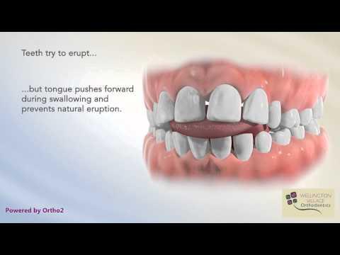 Tongue Thrust  - Wellington Village Orthodontics