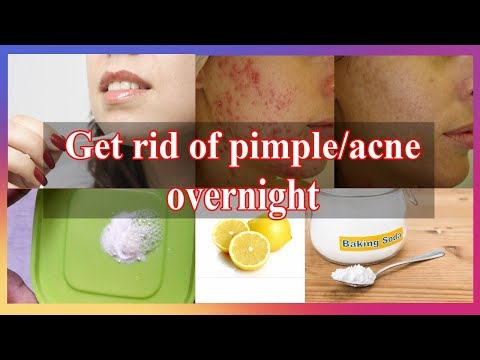 Get rid of pimples overnight | Acne spot treatment | Lemon and Baking soda