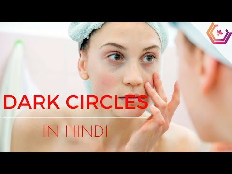 Dark Circles Treatment in Hindi - Remove Dark Circle under Eyes (Homemade Treatment)
