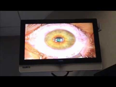 My LASIK eye procedure-from 20/200 to 20/10 vision
