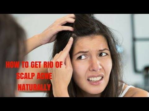 HOW TO GET RID OF SCALP ACNE NATURALLY