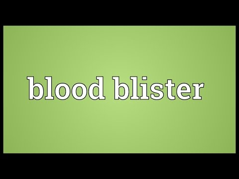 Blood blister Meaning