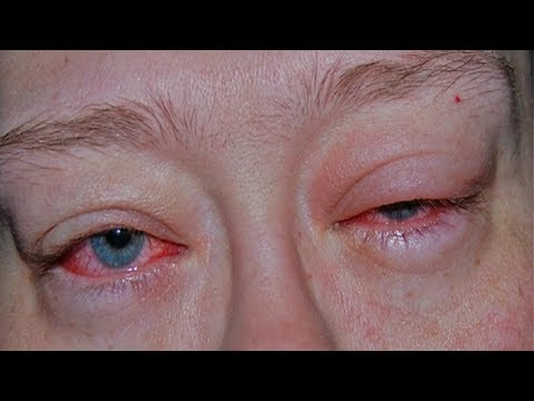 Awesome Remedies To Cure Sore Eyes In No Time.