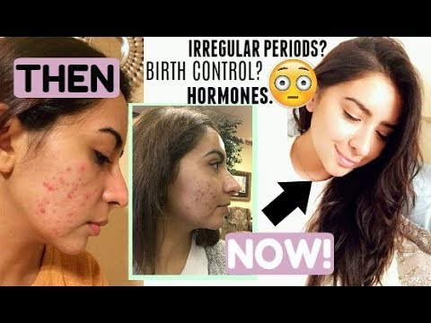 MY ACNE JOURNEY...& HOW I CLEARED MY SKIN