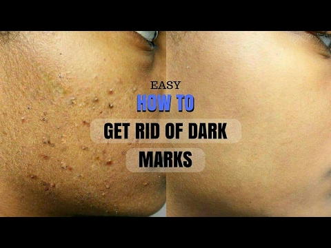 SKINCARE ROUTINE 2017 HOW TO GET RID OF PIMPLES, ACNE SCARS AND DARK MARKS | JOURNEYTOWAISTLENGTH
