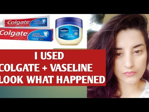 DOES APPLYING COLGATE AND VASELINE ON FACE WORK ? TRYING ON AND REVIEW