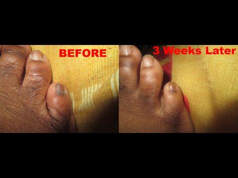 Pinky Toe Is Black - Cure Dark Black Toenails Naturally