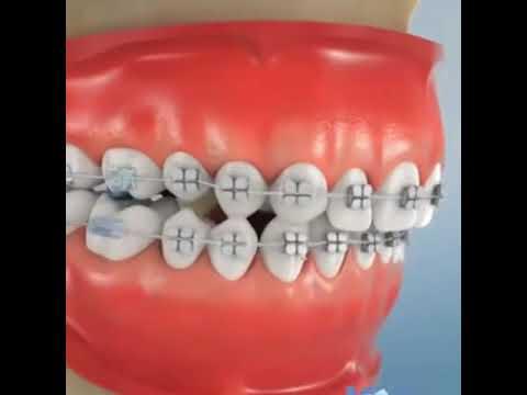 Dental Braces - Dr. Sarabjeet Singh   Chandigarh Orthodontics