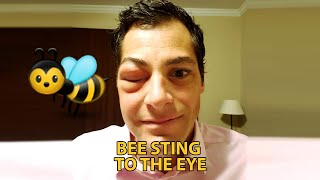 Download Beesting to the eye (very swollen) Video