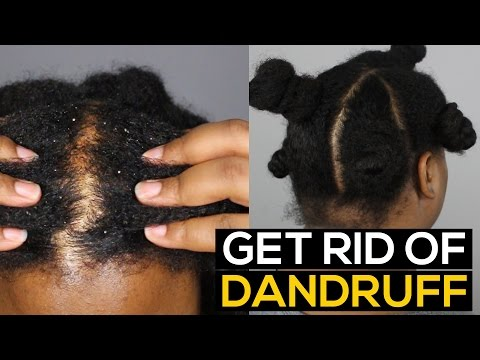 How To Get Rid of DANDRUFF PERMANENTLY & FAST | Ammina Rose