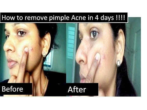 Home remedy to remove pimple in four days | With proof video |