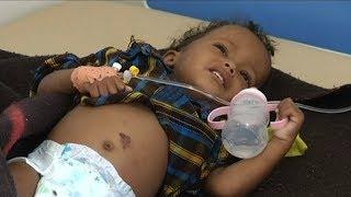 """A Forgotten Crisis"": Yemen"
