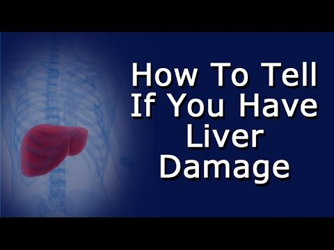 How To Tell If You Have Liver Damage