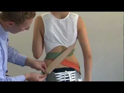Scoliosis Brace SpineCor Corporation