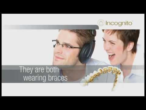 Incognito - lingual braces
