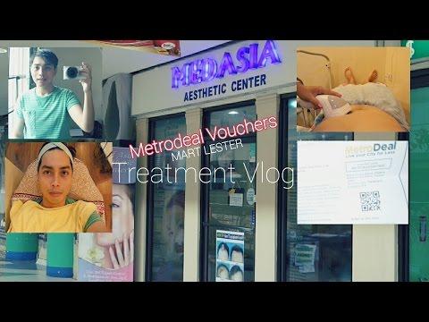 Lipocavitation Anti-ageing Facial Non Surgical Eye bag Treatment | Mart's Vlog