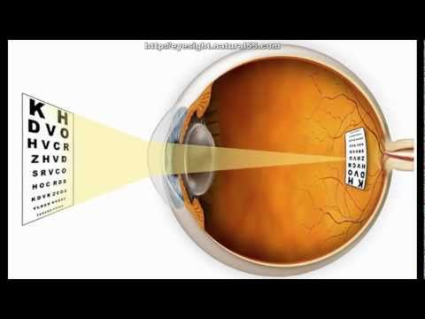 How To Improve Your Vision Without Wearing Glasses | Bates Method For Vision Improvement