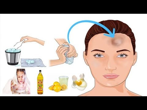 How to Get Rid of Bumps on Forehead