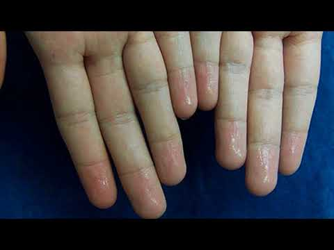 How To Treat Sweaty Hands And Palm Naturally- How To Stop Sweat In Hands