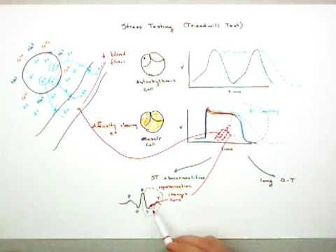 Stress Testing (Treadmill Test) Part 2