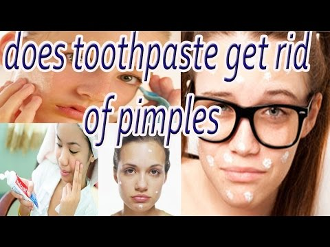 Does toothpaste get rid of pimples | How to Get Rid of Acne Overnight