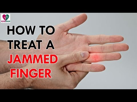 How to Treat a Jammed Finger - Health Sutra