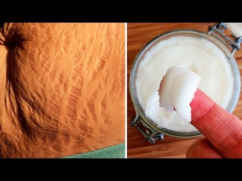 How to Get Rid of Stretch Marks Fast and Naturally - It Works!
