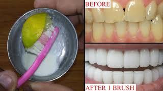 सिर्फ 1 मिनट में दांतो का पीलापन दूर कर सफ़ेद मोती जैसे चमकदार बना देगा ये नुस्खा - In Hindi
