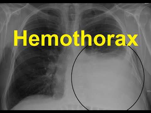Hemothorax Symptoms, Causes and Treatment