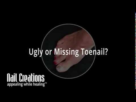 Solution for Missing Toenail or Ugly Toenail - Nail Creations Appealing While Healing™