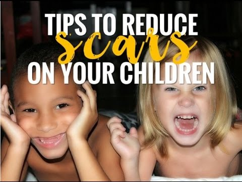 Tips To Reduce Scars On Your Children